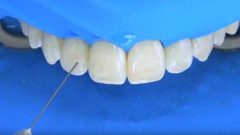 Icon step-by-step video on fluorosis treatment
